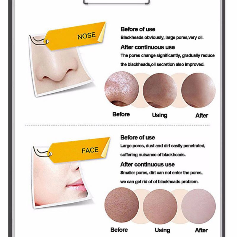 how to clean out your nose pores