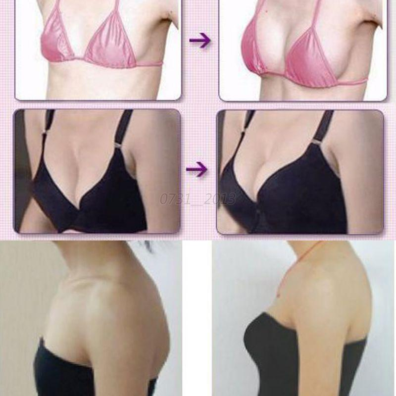 Natural Breast and Buttocks Augmentation - Las Vegas